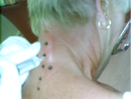 Arthrose cervico dorsale