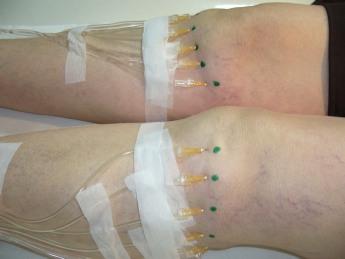 Traitement d une arthrose des deux genoux