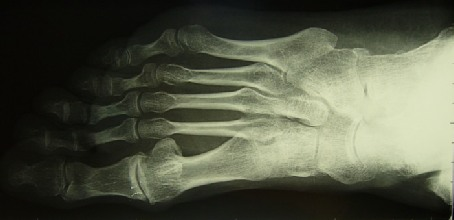 Arthrose métatarso-phalangique