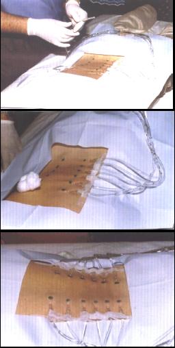Exemple pratique : Canal lombaire étroit avec discopathie L5 - S1 et stéophytose exubérante